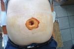 Пациент У. Фото на 4 сутки после операции по поводу пупочной грыжи