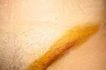 photo-posle-operacii