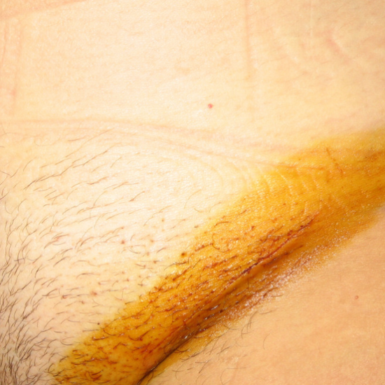 паховая грыжа операция